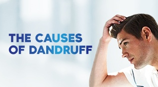 The causes of dandruff