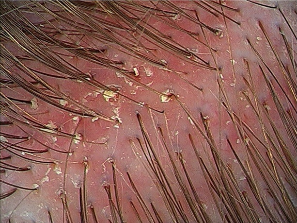 Inflamed scalp